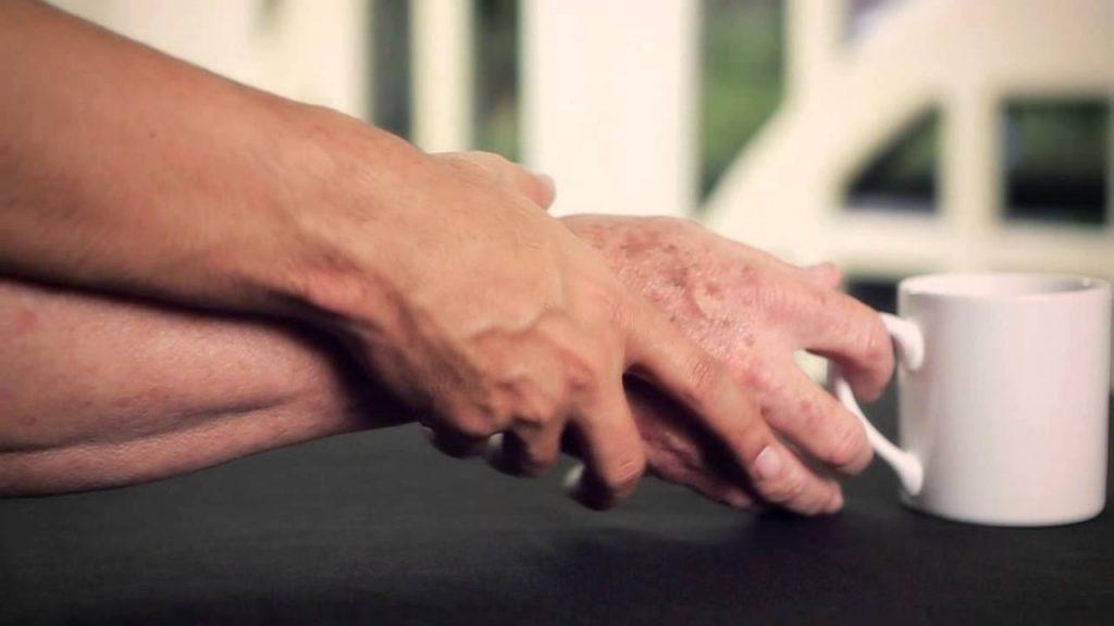 detectar el Parkinson
